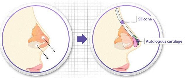 Nâng mũi có ảnh hưởng gì đến sức khỏe không?_4