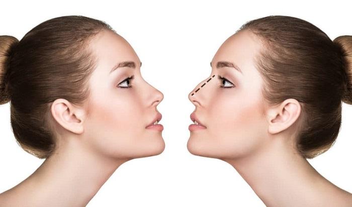 Phẫu thuật nâng mũi uy tín ở đâu - hình 2